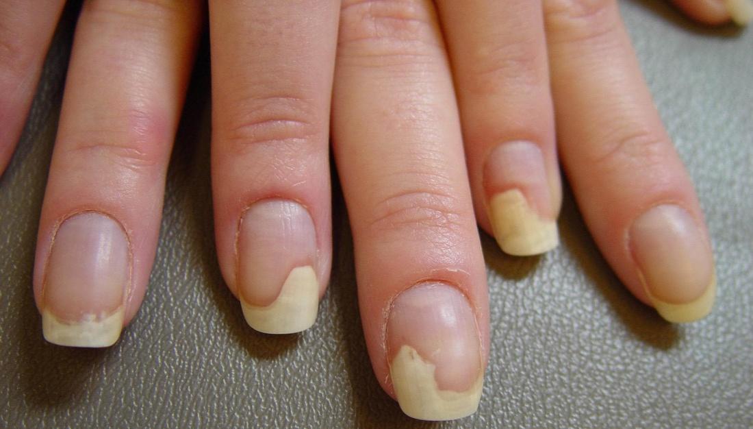 Отслоение ногтя